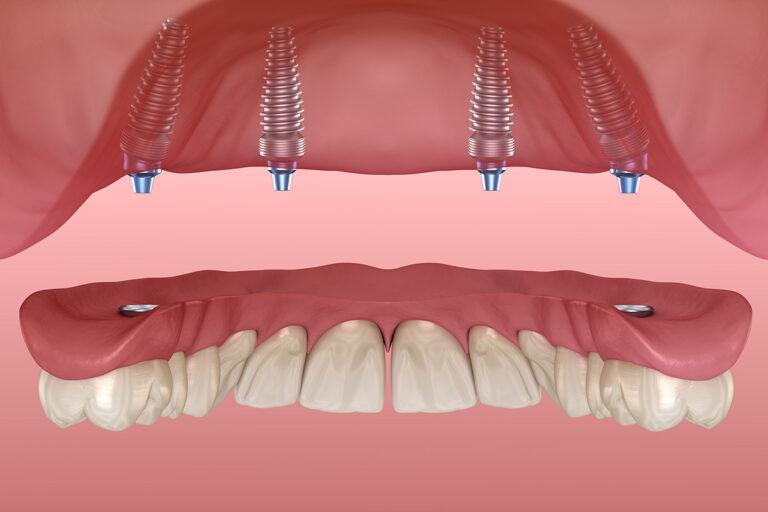 Proteze dentare: tipuri, caracteristici, prețuri