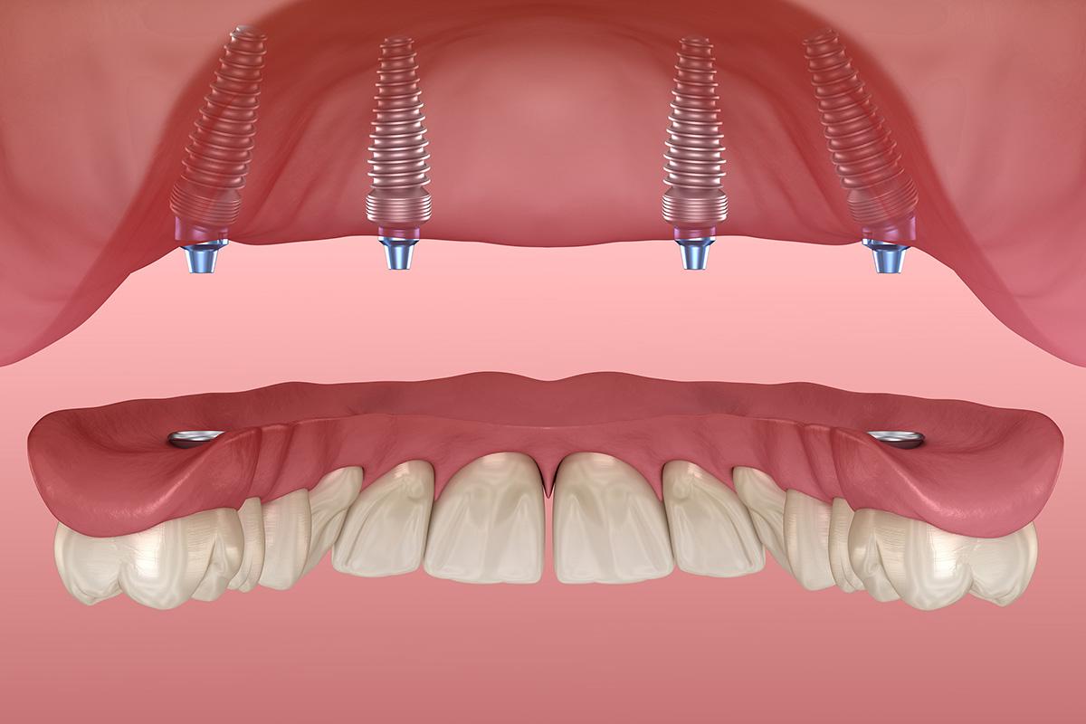 Зубное протезирование: виды, особенности, цены