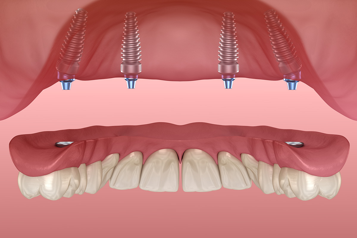 Dental Prosthetics: Types, Features, Prices