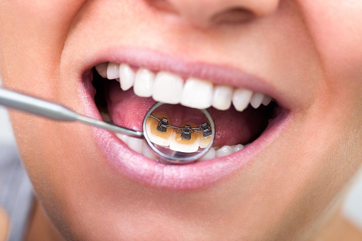 Lingual Braces: Advantages and Disadvantages