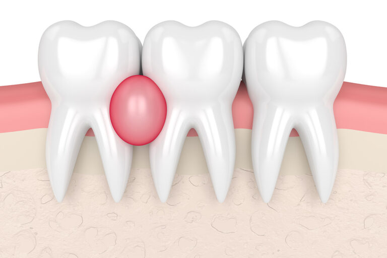 Tooth Granuloma: Causes, Symptoms, Diagnostics, and Treatment