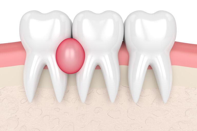 Il granuloma dentale: cause, sintomi, diagnosi e cura