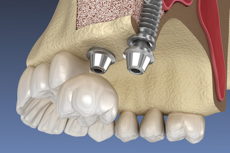 Sinus Lift: What is It and When is It Required?