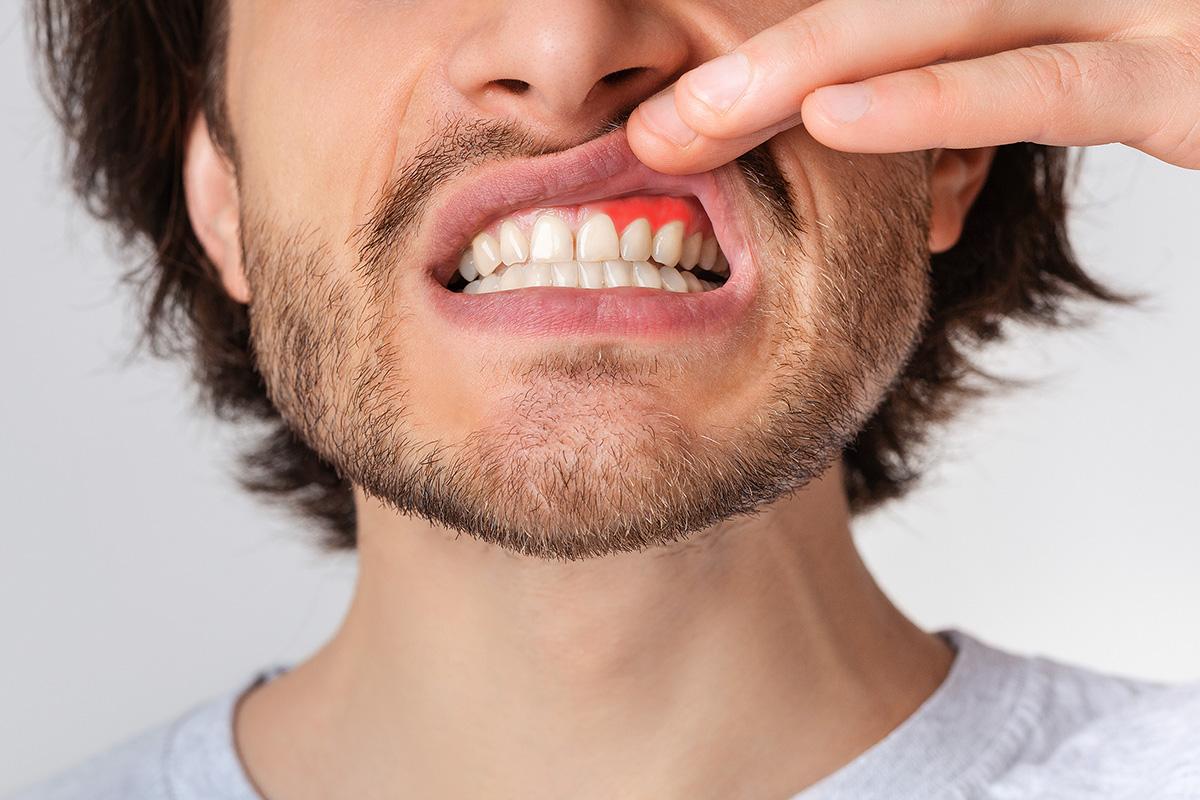 Ce este gingivita?