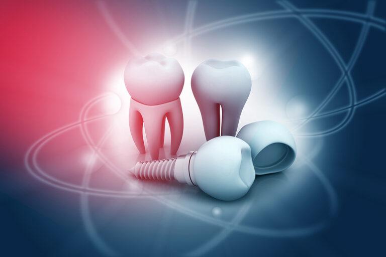 Implantation Advantages and Disadvantages