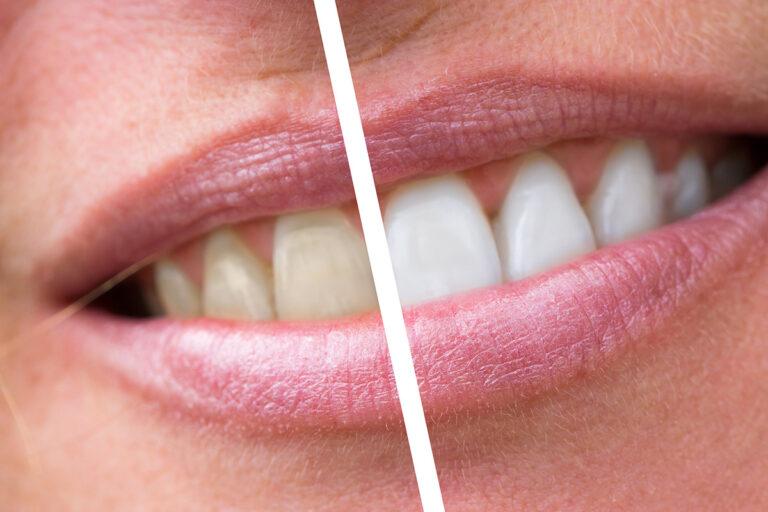 La placca dentale – Cause e cura