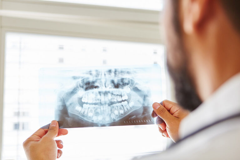 Rimozione delle cisti dentali