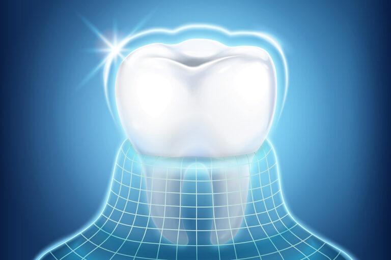 Smalțul dinților: abraziune, eroziune și restaurare