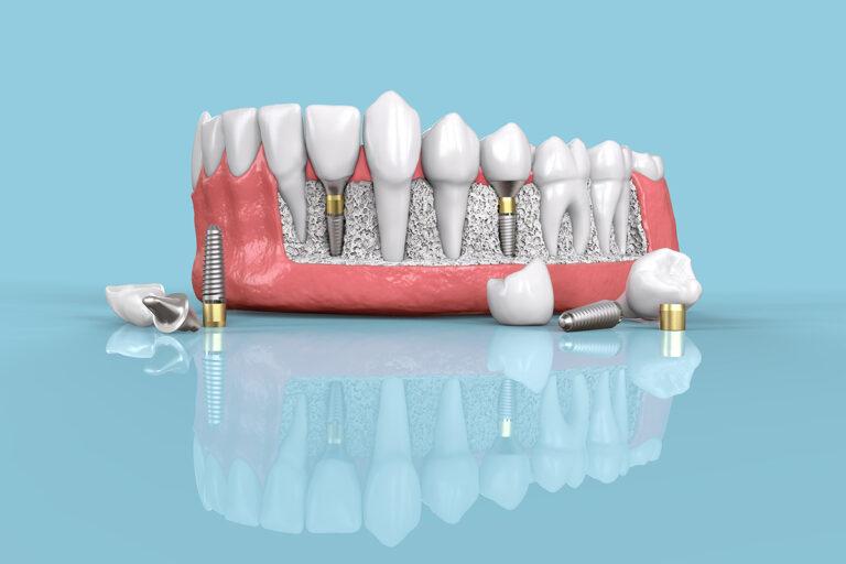 Când sunt necesare implanturi dentare?